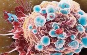 cura cancro australia