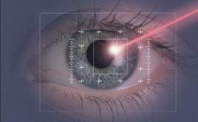 laser occhio